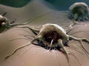 Болезнетворные микроорганизмы – трихомонады