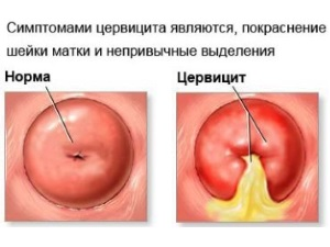 Симптомы цервицита