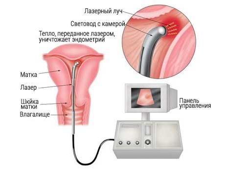 Лечение гиперплазии лазером
