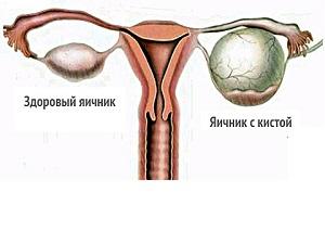 Киста яичников - причина увеличения матки
