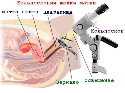 Колькоскопия матки
