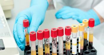 Анализ крови на ФСГ и ЛГ