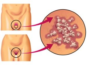 Локализация генитального герпеса