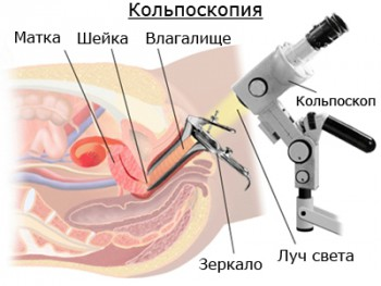 Кольпоскопия для диагностики эктопии шейки матки