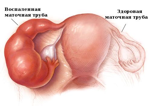 Оофорит - причина боли в яичнике