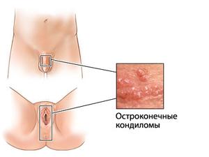 Польза Гардасила при генитальных кондиломах