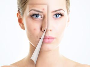 Польза препаратов с этинилэстрадиолом при угревой сыпи
