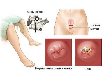 Схема кольпоскопии шейки матки