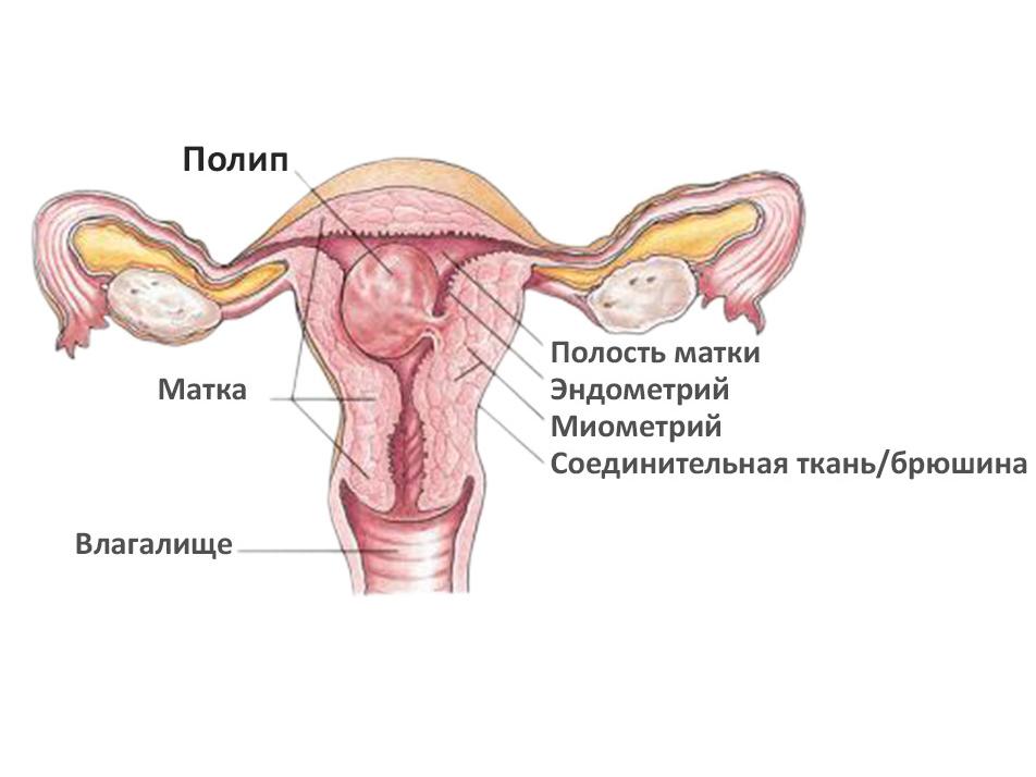 Схема полипа эндометрия