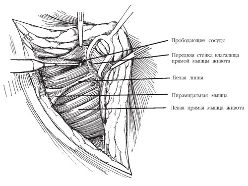 Схема проведения нижнего поперечного разреза