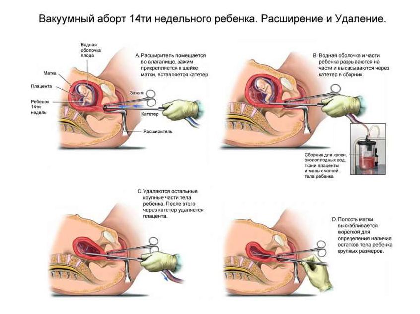 Схема вакуумного аборта