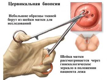 Цервикальная биопсия шейки матки