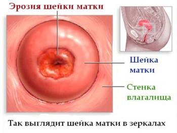 Эрозия шейки матки - причина кисты эндоцервикса