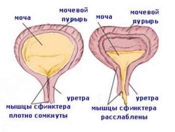 Схема нейрогенной дисфункции мочевого пузыря