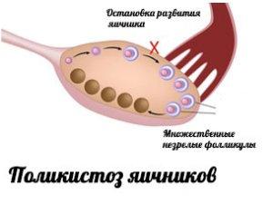 Схема поликистоза яичноков