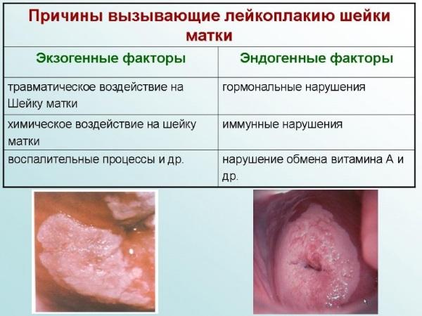 Причины лейкоплакии шейки матки