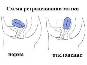 Схема ретродевиации матки