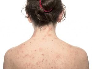 Сыпь - симптом сифилиса