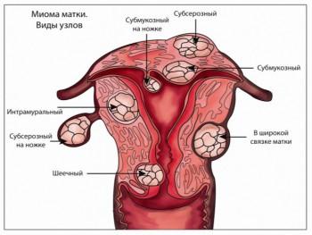 Проблема фибромы матки