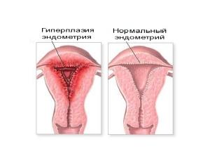 Гиперплазия эндометрия - причина сгустков