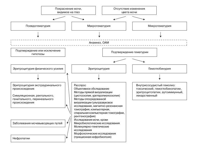 Дифференциальная диагностика гематурии