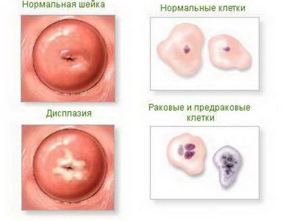 Шейка матки в норме и при дисплазии