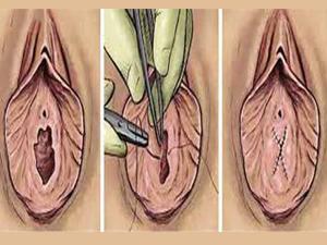 Этапы гименопластики