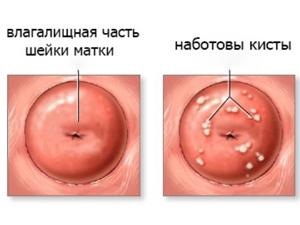 Кисты во влагалище