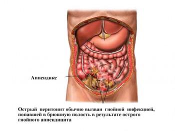 Перитонит - причина острого живота