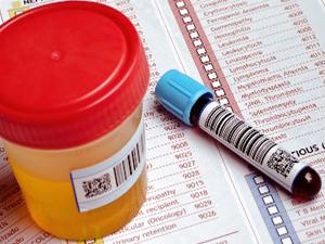 Сдача анализов на ВИЧ