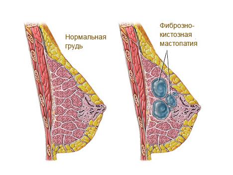 Схема диффузно-кистозной мастопатии