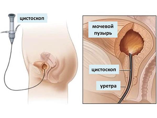 Схема инстилляции мочевого пузыря