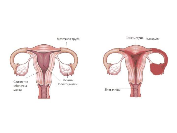Схема эндометрита