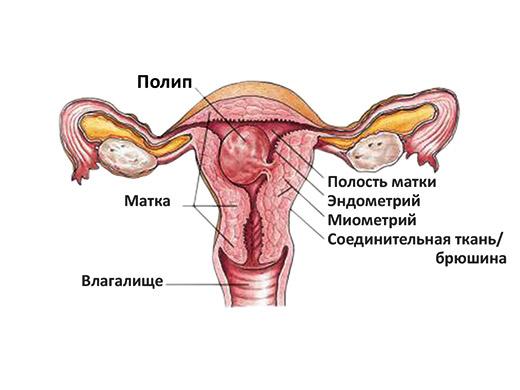 Схема плацентарного полипа