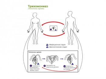 Цикл развития трихомонады
