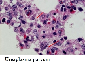 Ureaplasma parvum