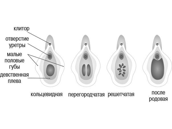 Виды девственной плевы