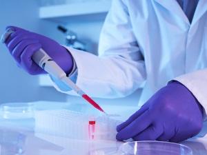 Исследование анализа крови на реакцию Вассермана