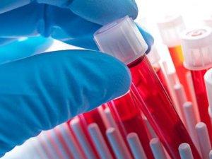 Проведение анализов для исключения патологий