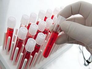 Анализ крови на СТГ