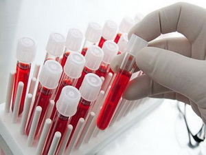 Анализ крови на выявление вируса папилломы