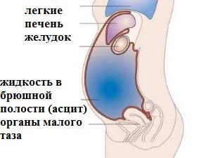 Асцит - симптом фибромы яичника