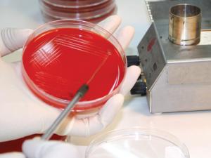 Исследование микрофлоры для постановки диагноза