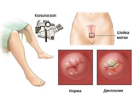 Дисплазия шейки матки - показание к эксцизии