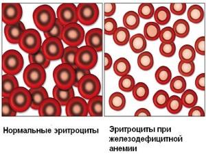 Анемия - следствие аденомиоза