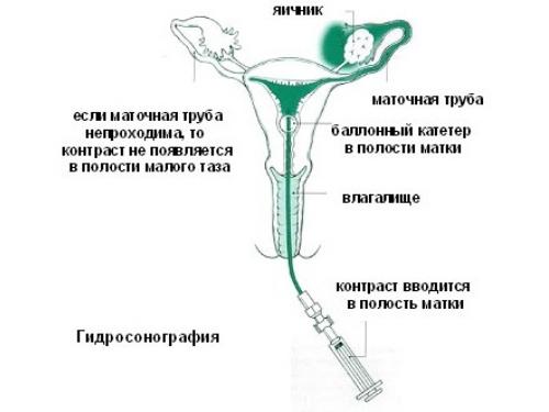 Гидросонография