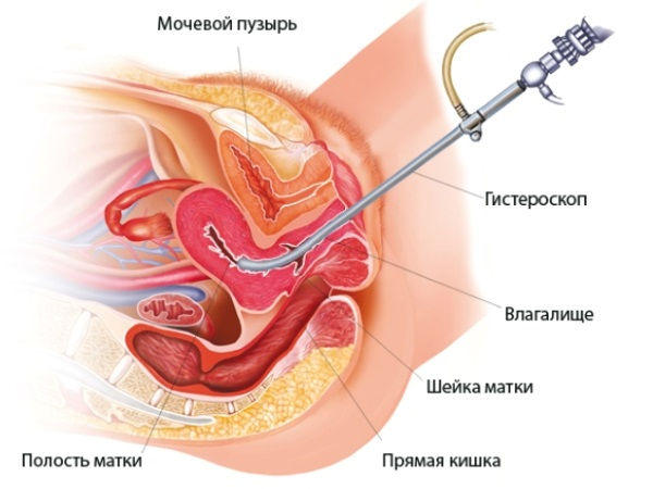 Схема процесса гистероскопии