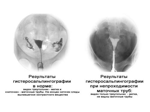 Результаты гистеросальпингографии при проходимости и непроходимости труб