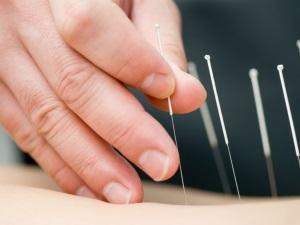 Иглотерапия для прерывания беременности