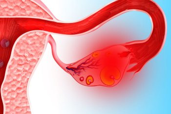 Опасность разрыва кисты яичника